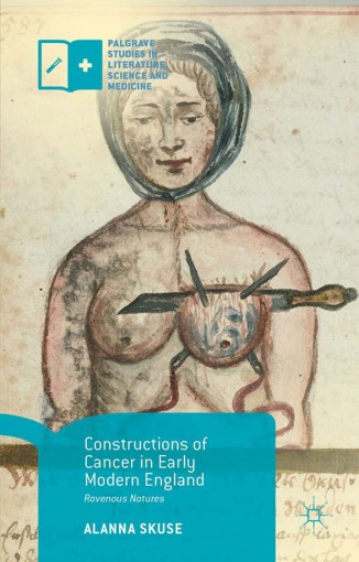 Constructions of Cancer in Early Modern England: Ravenous Natures (Palgrave Studies in Literature, Science and Medicine) by Alanna Skuse